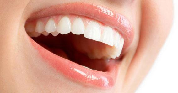 Veränderung der Mundschleimhaut